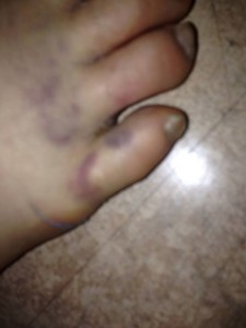 Thoresen's Foot (pictured on Facebook today)